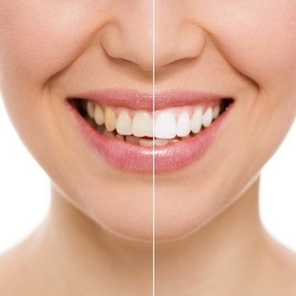 Comparison of teeth whitening with Seattle Cosmetic Dentistry