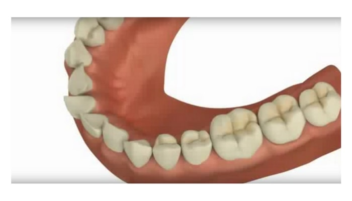Image preview of video showing teeth angled outward or inward