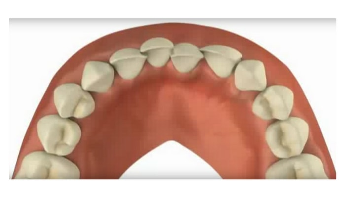 Image preview of video showing overcrowding of teeth