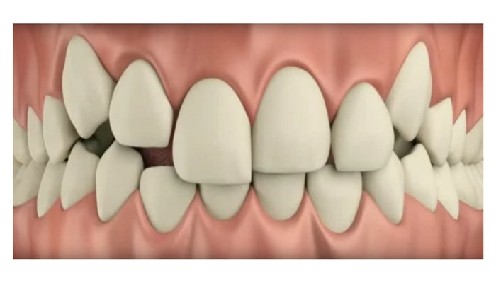 Image preview of video showing how MTM® corrects teeth too high or too low.