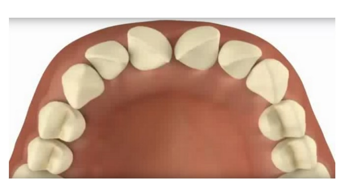 Image preview of video showing teeth turned clockwise or counterclockwise