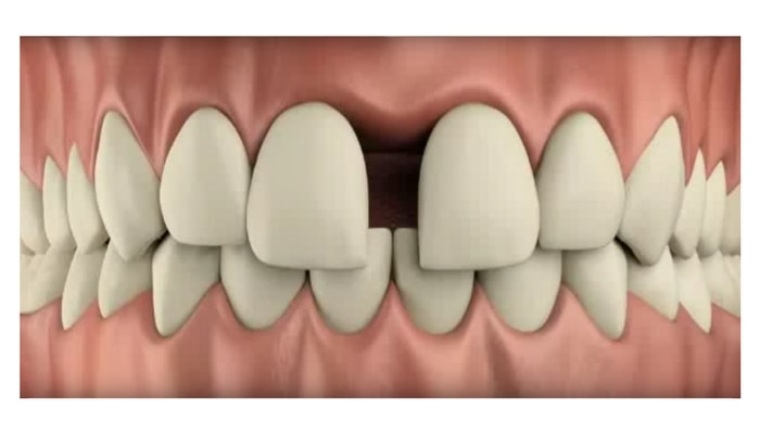 Image preview of video showing uneven spacing and gaps in front teeth