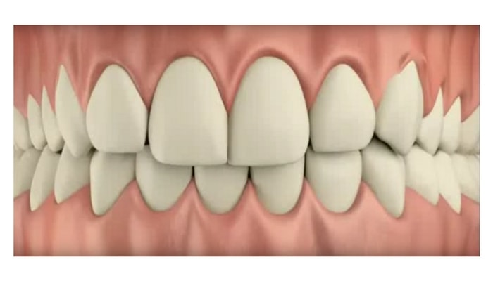 Image preview of video showing upper and lower teeth not centered
